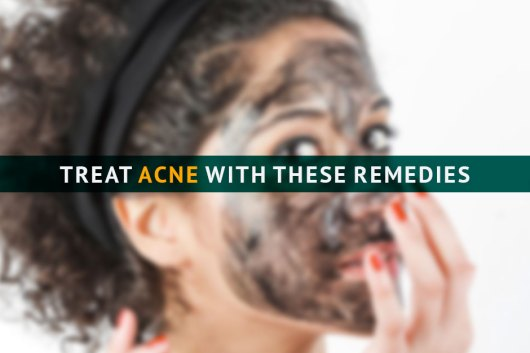 acne-marham