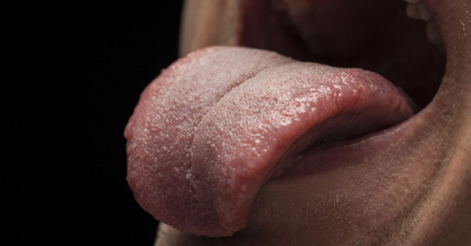 5 Signs of Health Problems Shown By Your TongueMarham