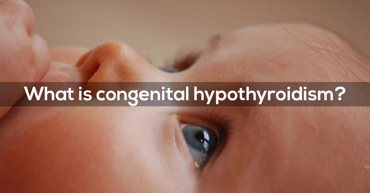 congenital hypothyroidism