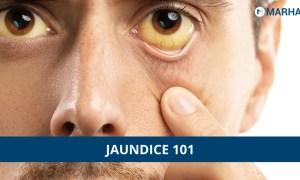 Jaundice Treatment, Causes, Symptoms And Risks