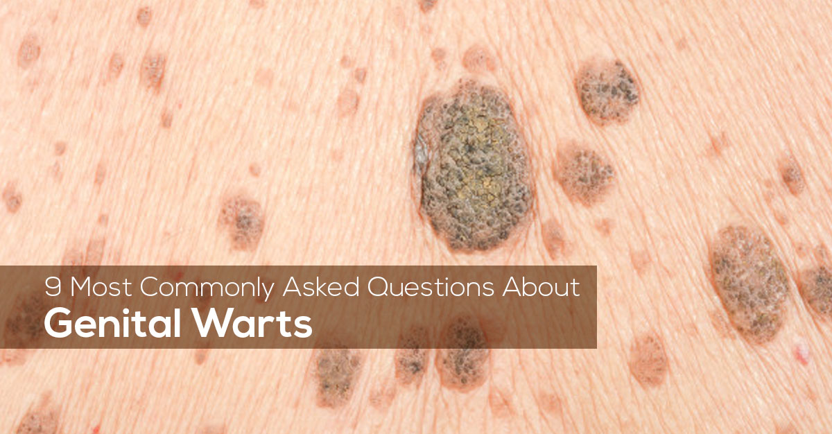9 Most Commonly Asked Questions About Genital Warts