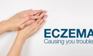 Quick Read: Want To Know Some Hacks To Deal With Eczema?