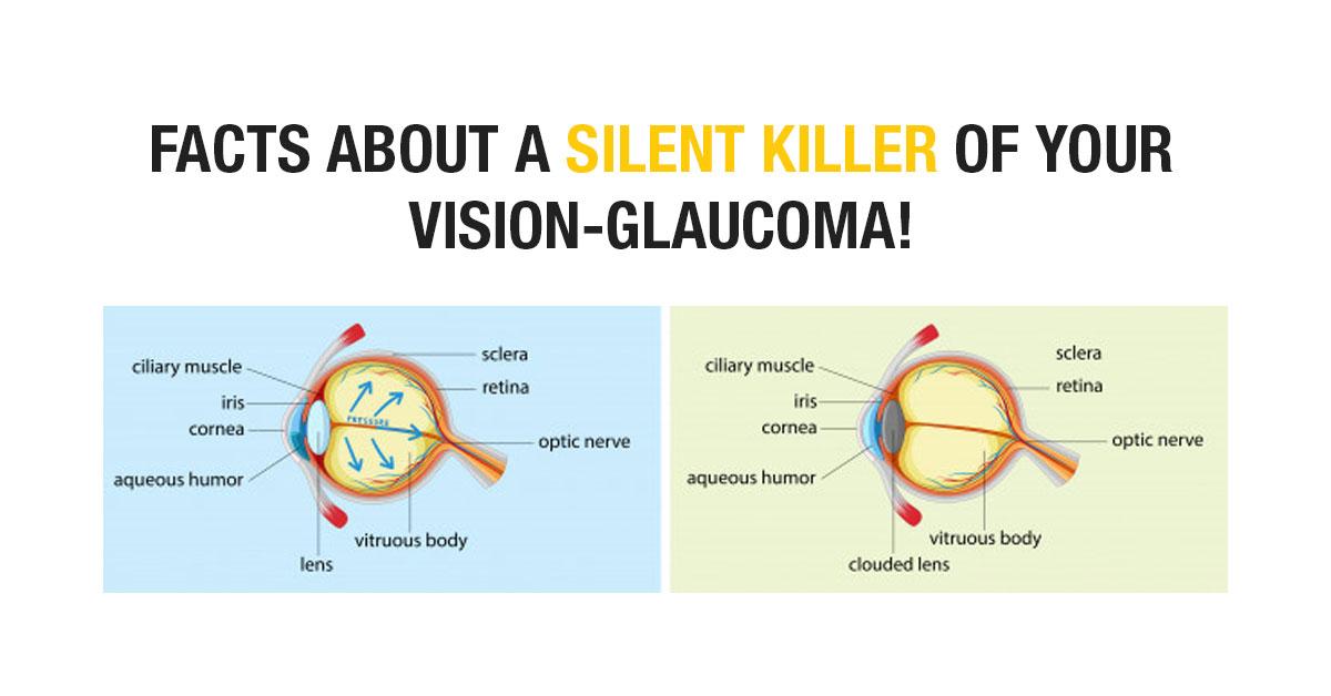 Vision-Glaucoma