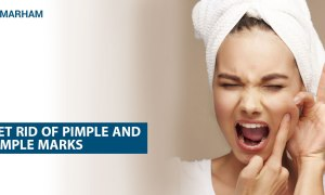 Get Rid Of Acne And Pimple Marks Using These Remedies