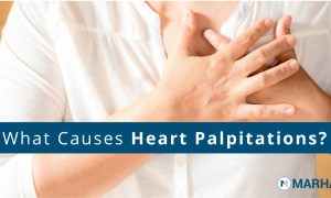 Heart Palpitations: What Are The Possible Causes And Treatments?