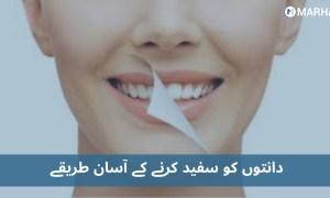 دانتوں کے دھبے اور پیلا پن صاف کرنے اور سفید بنانے کے آسان طریقے