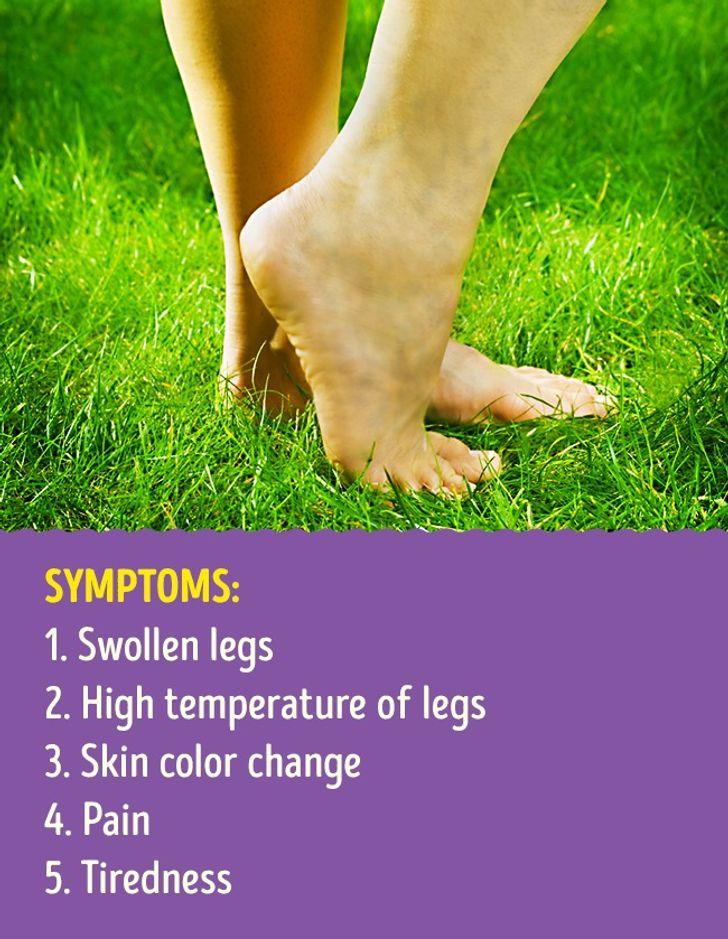 ٹانگوں کا درد