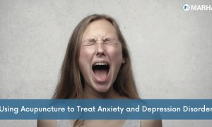 Using Acupuncture to Treat Anxiety and Depression Disorders Easily