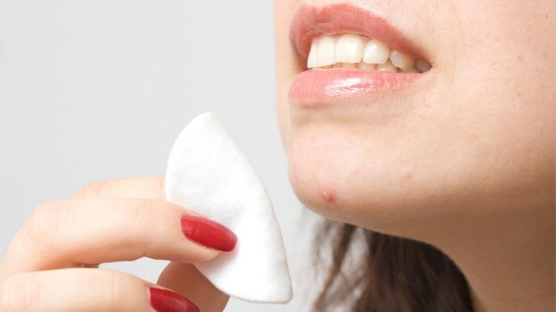 Pimple problems