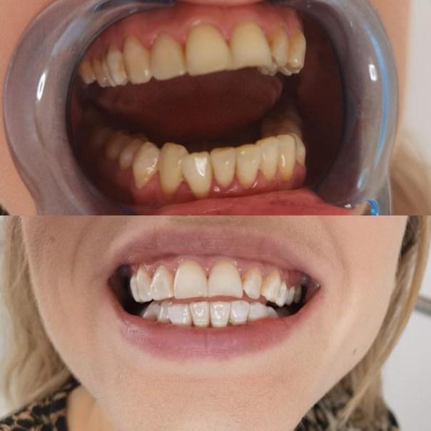 tandblekning som fungerar