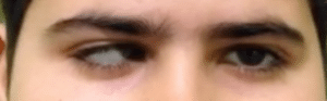 Paralytic Strabismus 3