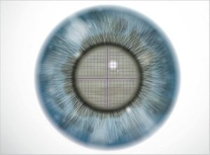 Frantumazione del nucleo cristallino - Chirurgia della cataratta