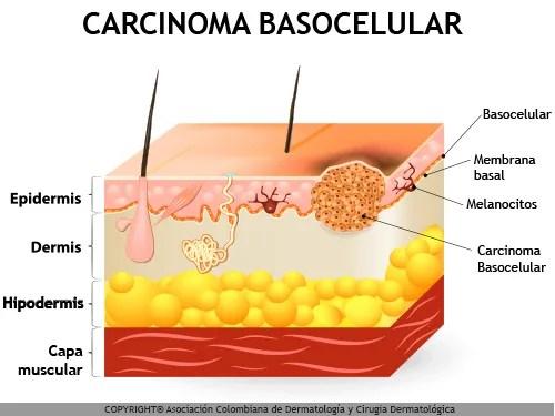 Carcinoma_Basocelular_Maria_Iranzo_Biotec