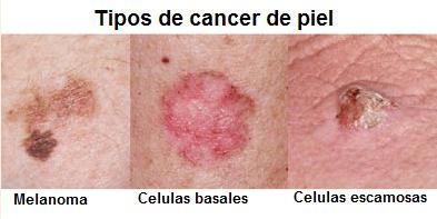 Comparaciones_Canceres_Piel_Maria_Iranzo_Biotec