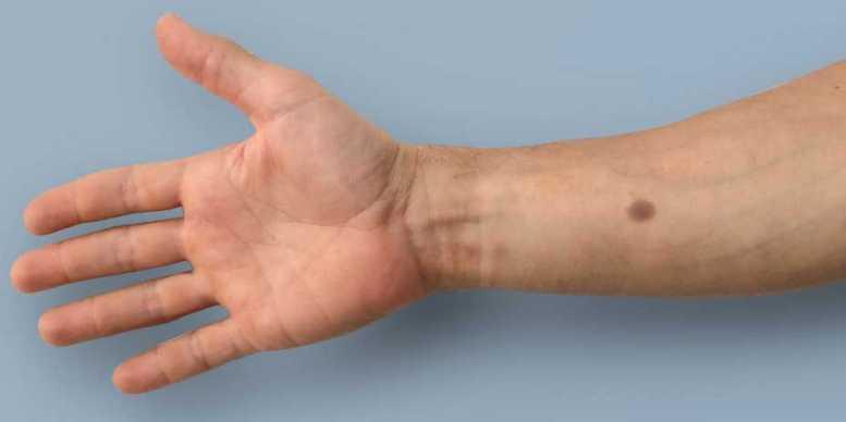 Tatuaje_Diagnostico_Cancer_Biotecnologia_Maria_Iranzo_Biotec