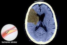 High blood pressure cause stroke