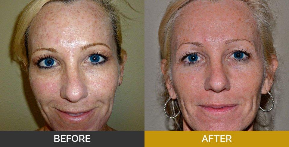 The Paragon Medspa   Skin Treatments   Plastic Surgery Dallas TX
