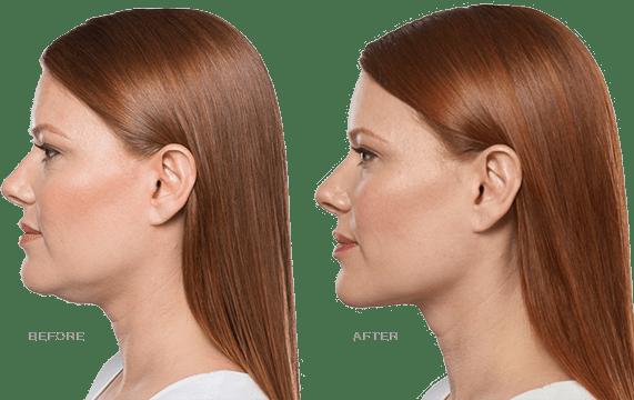 Minimally Invasive Procedures | Plastic Surgery Dallas TX