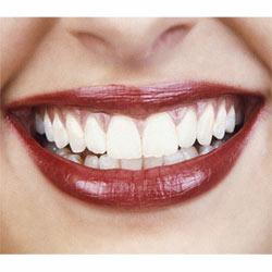 ¿Qué precio pone el cliente a una sonrisa?