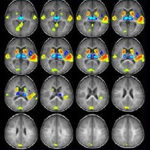 Así se ve su cerebro en un estudio de neuromarketing