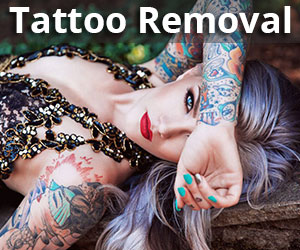 %name Tattoo Removal