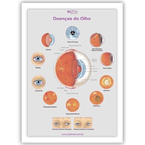 Poster doencas do olho martinato