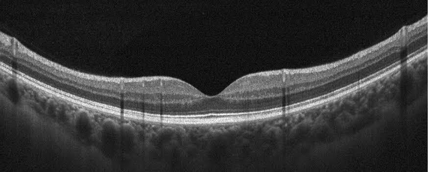 oct-oftalmologia