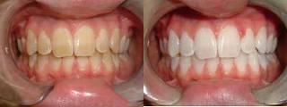 , Sbiancamento Dentale
