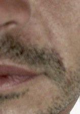 tossina botulinica uomo