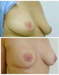 sollevamento del seno con fili
