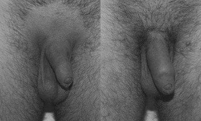 lipopenoscultura - prima e dopo il trattamento