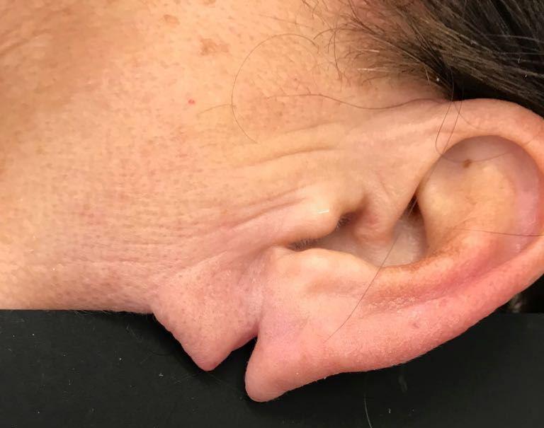 rottura lobo orecchio, Rottura lobo orecchio – Ricostruzione chirurgica