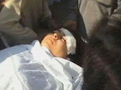 Malala Yousafzai shot