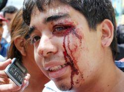 Estudiante herido, 30 de julio. Foto: Gilberto en Picasa.