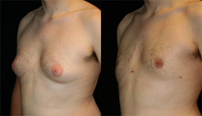 Gynecomastia-Male-breast-reduction