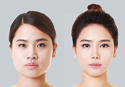 Korean Plastic Surgery Face