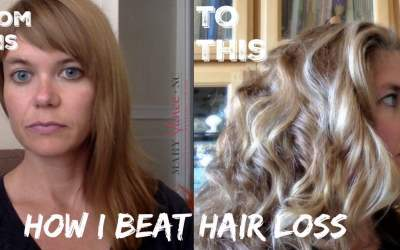 How I Beat Hair Loss