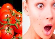 Mascarilla de jitomate para acné