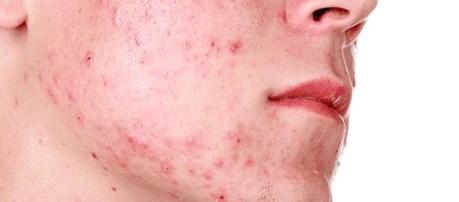 Mascarilla de tomate para el acné