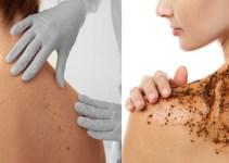 Cómo Quitar el acné de la espalda