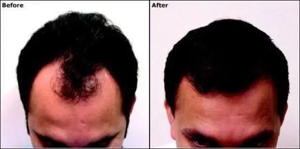 stop hair loss hair regrowth