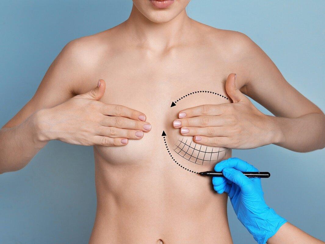 Cirugía de la mama