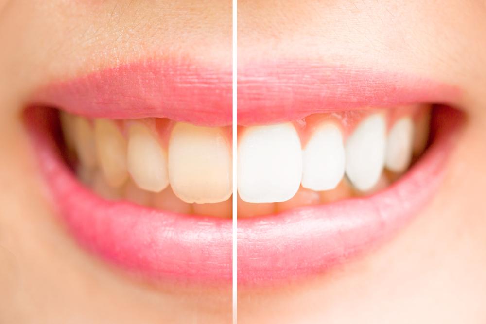 perdida-esmalte-dental