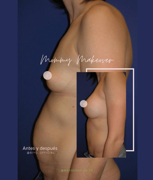Mommy Makeover antes y después del embarazo biyo salvador