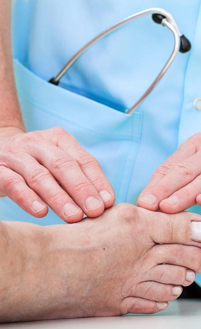 Sufres de juanetes Cirugía Mínima Invasiva