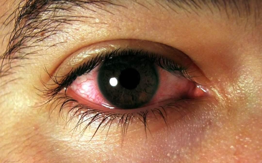 Síndrome de Ojo Seco
