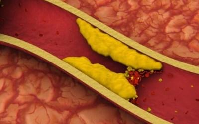 ¿Cómo se clasifica el colesterol y cómo afecta a nuestra salud?