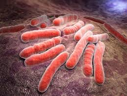 Penjelasan Lengkap Tuberkulosis Adalah - Pengertian TB Paru | Artikel TBC Terbaru