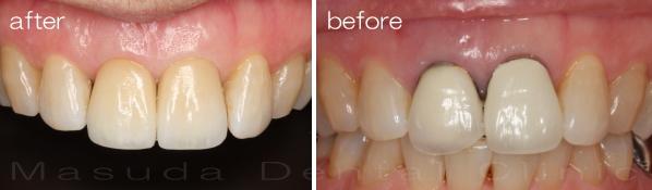 インプラント治療前後 右上前歯にインプラント治療を行っています。