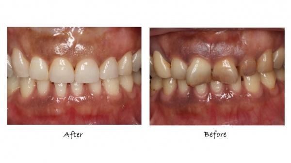 審美歯科治療前後 正面